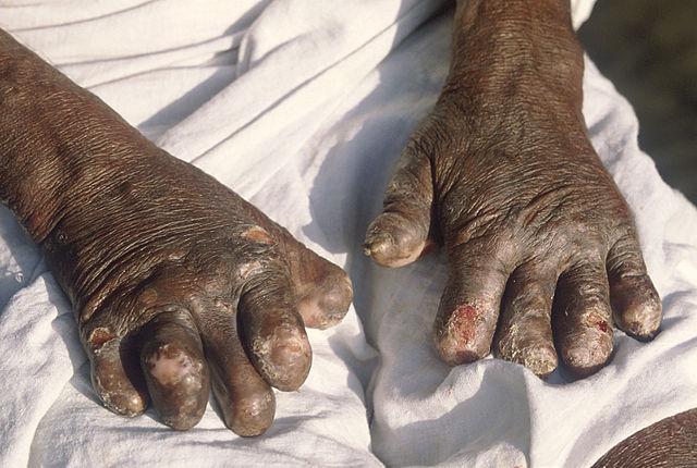Manos deformadas por la lepra