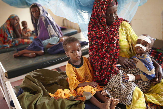Foto de niños malnutridos en África
